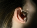 House of Fertility and Healing_Acupuncture Treatment in Ear